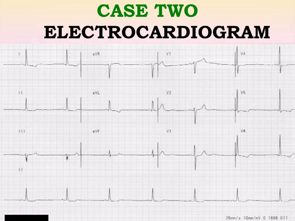 CASE TWO ELECTROCARDIOGRAM