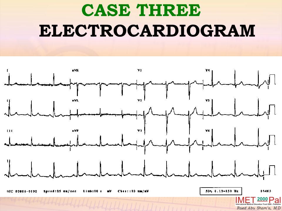 CASE THREE ELECTROCARDIOGRAM