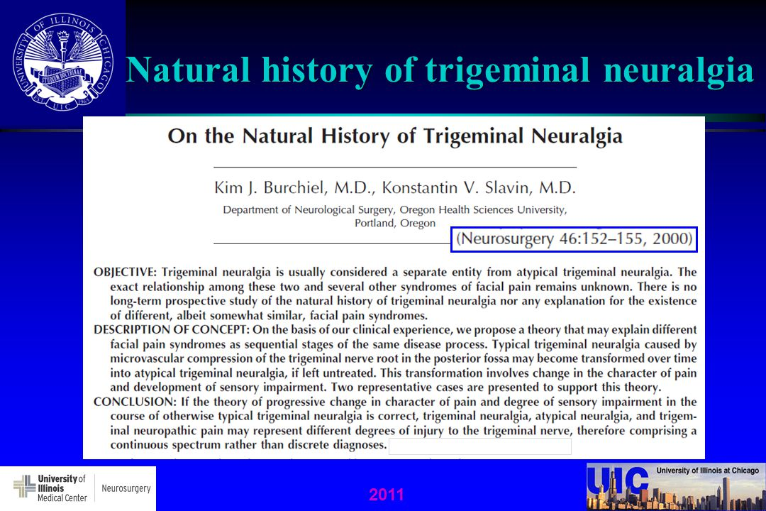 Natural history of trigeminal neuralgia