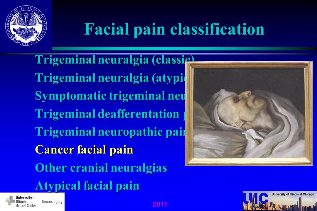 Facial pain classification