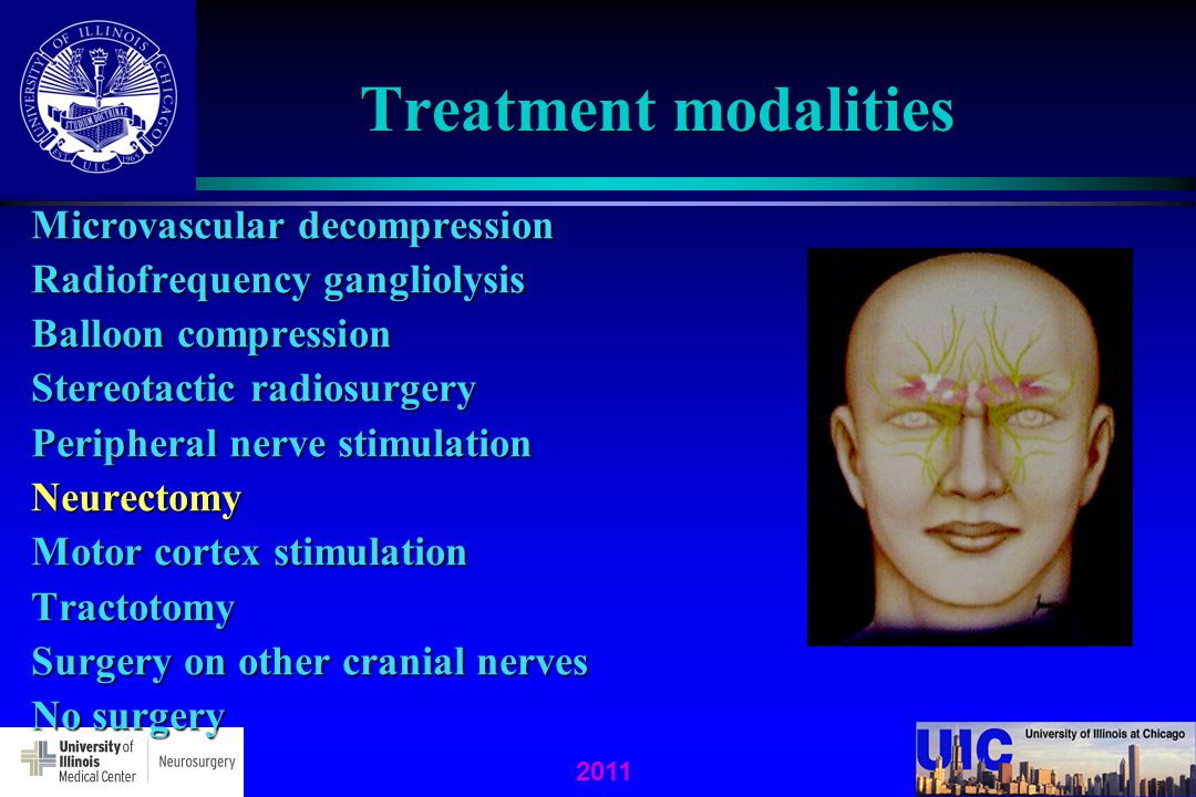 Treatment modalities Microvascular decompression