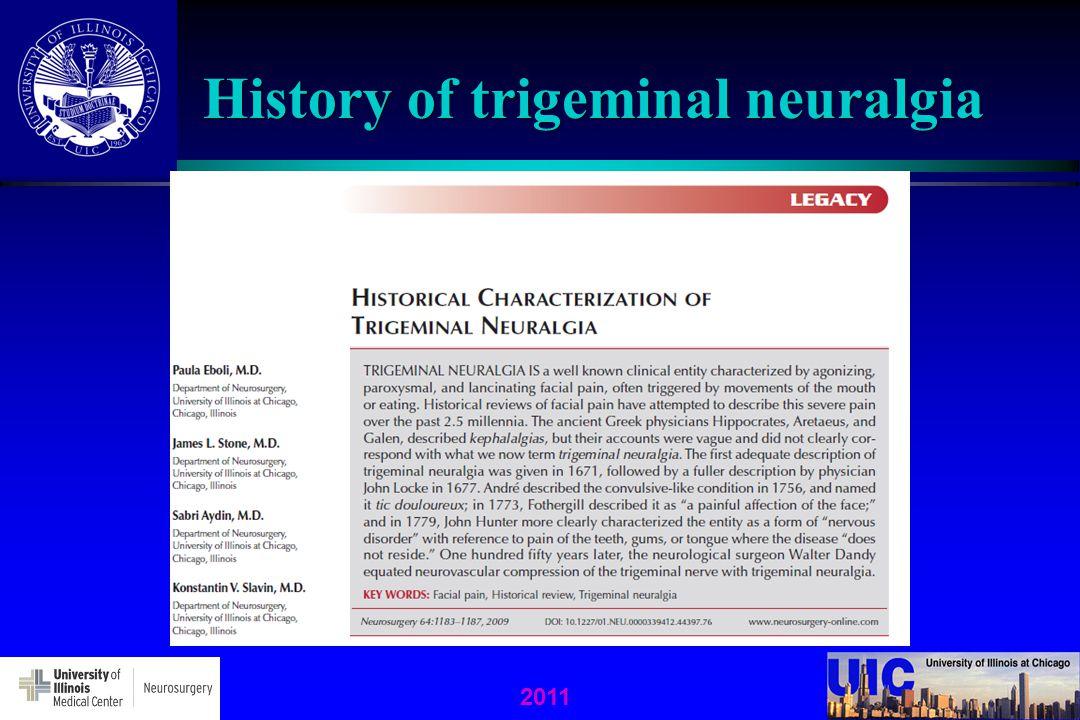 History of trigeminal neuralgia