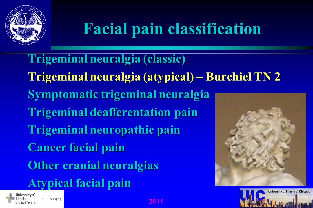 neurostimulation pain Atypical facial