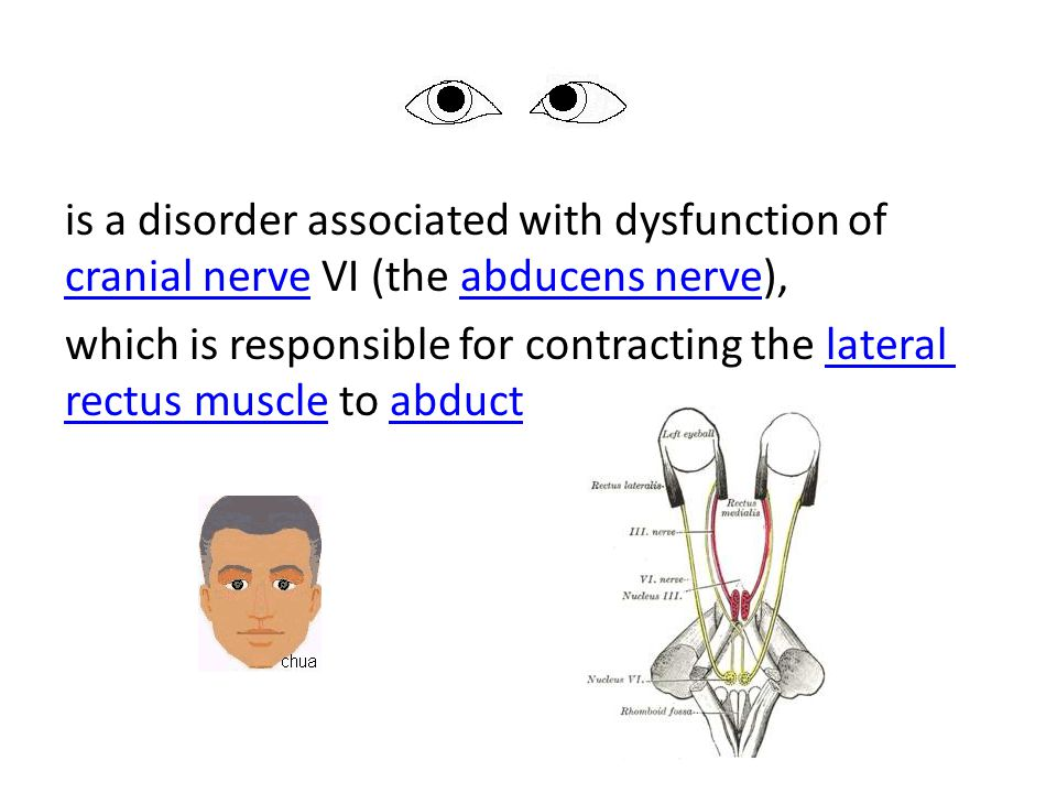 is a disorder associated with dysfunction of cranial nerve VI (the abducens nerve), which is responsible for contracting the lateral rectus muscle to abduct