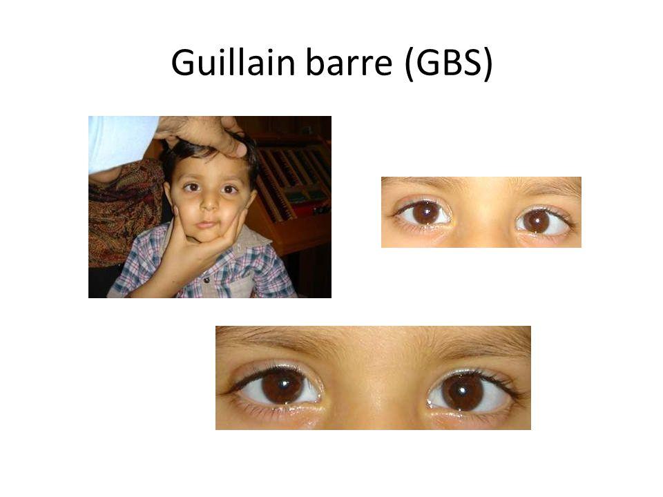 (GBS) Guillain barre
