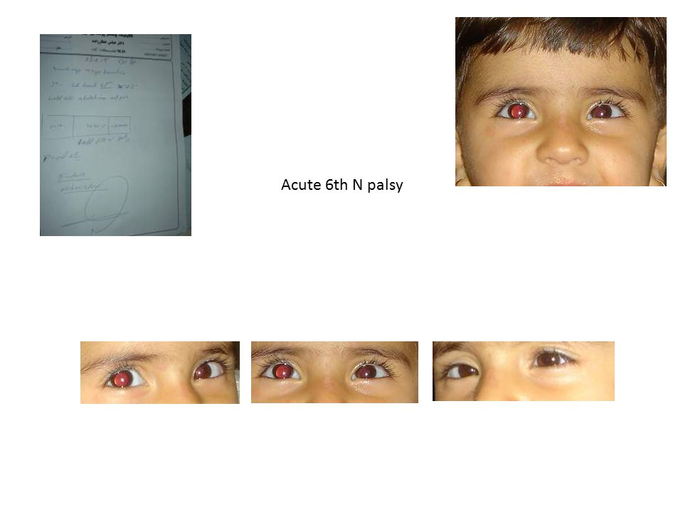 Acute 6th N palsy