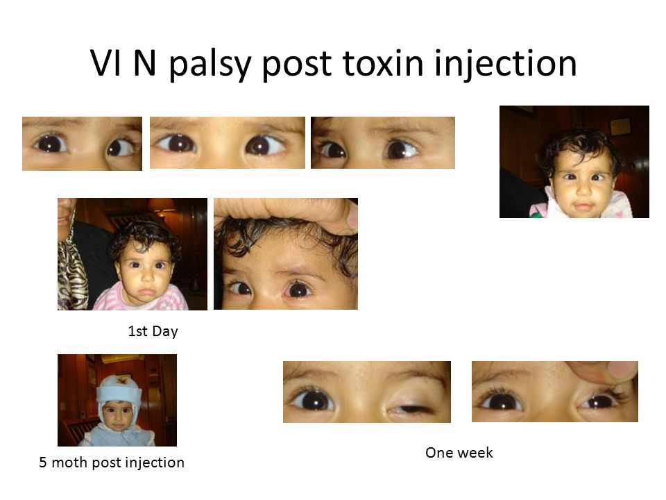 VI N palsy post toxin injection