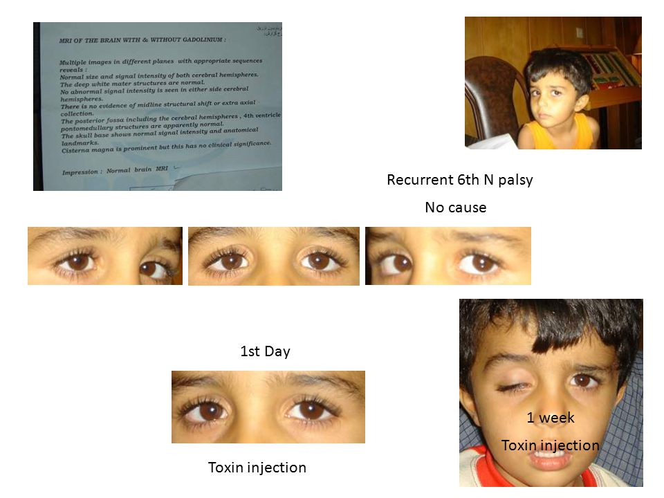 Recurrent 6th N palsy No cause 1st Day 1 week Toxin injection Toxin injection
