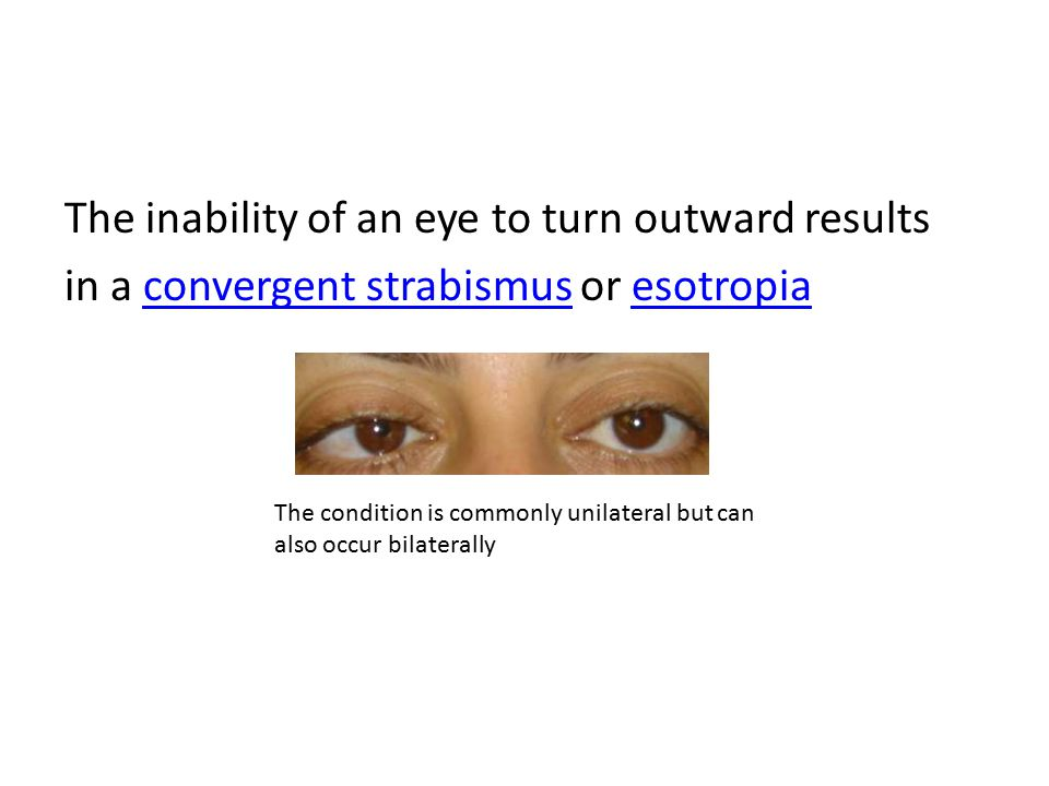 The inability of an eye to turn outward results in a convergent strabismus or esotropia