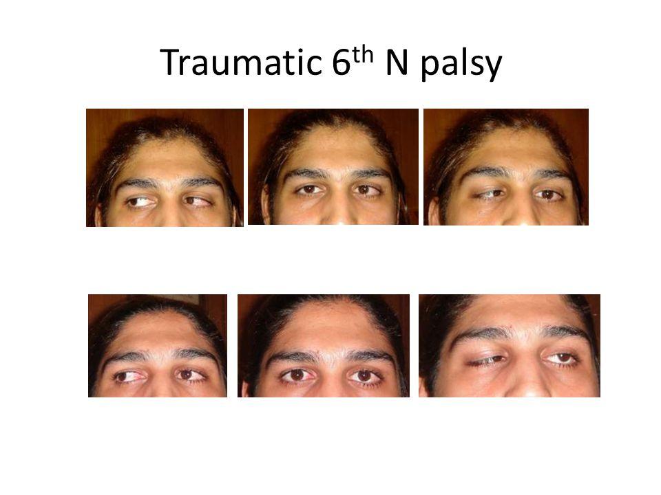 Traumatic 6th N palsy