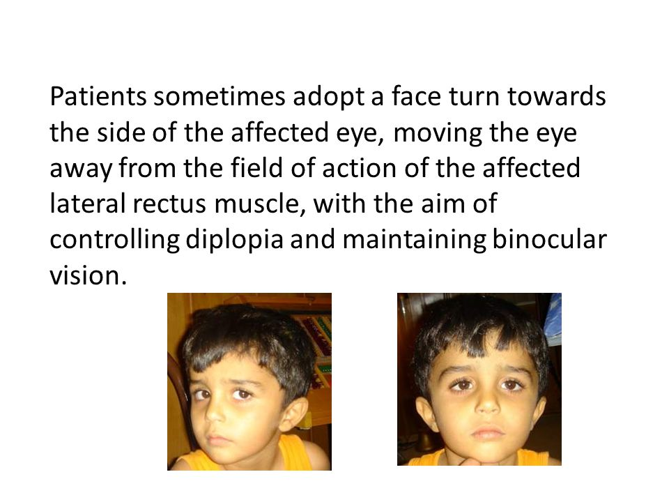 Patients sometimes adopt a face turn towards the side of the affected eye, moving the eye away from the field of action of the affected lateral rectus muscle, with the aim of controlling diplopia and maintaining binocular vision.