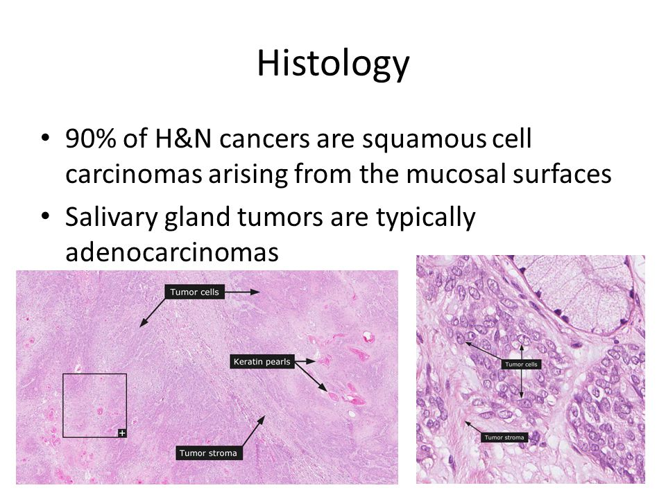 Histology 90% of H&N cancers are squamous cell carcinomas arising from the mucosal surfaces.