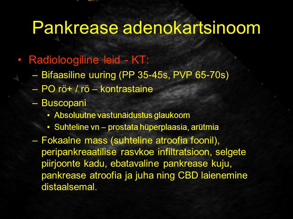Pankrease adenokartsinoom