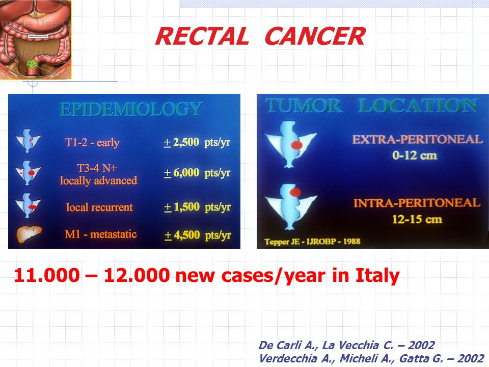 RECTAL CANCER 11.000 – 12.000 new cases/year in Italy