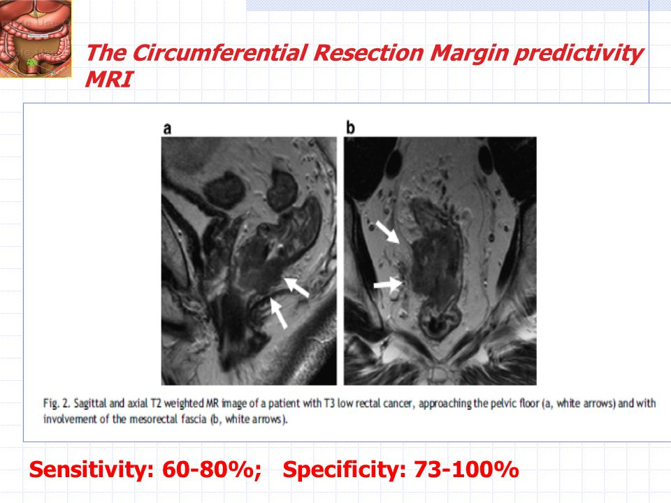 The Circumferential Resection Margin predictivity
