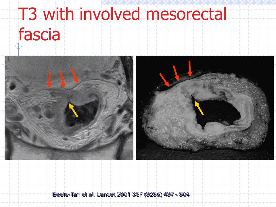 T3 with involved mesorectal fascia