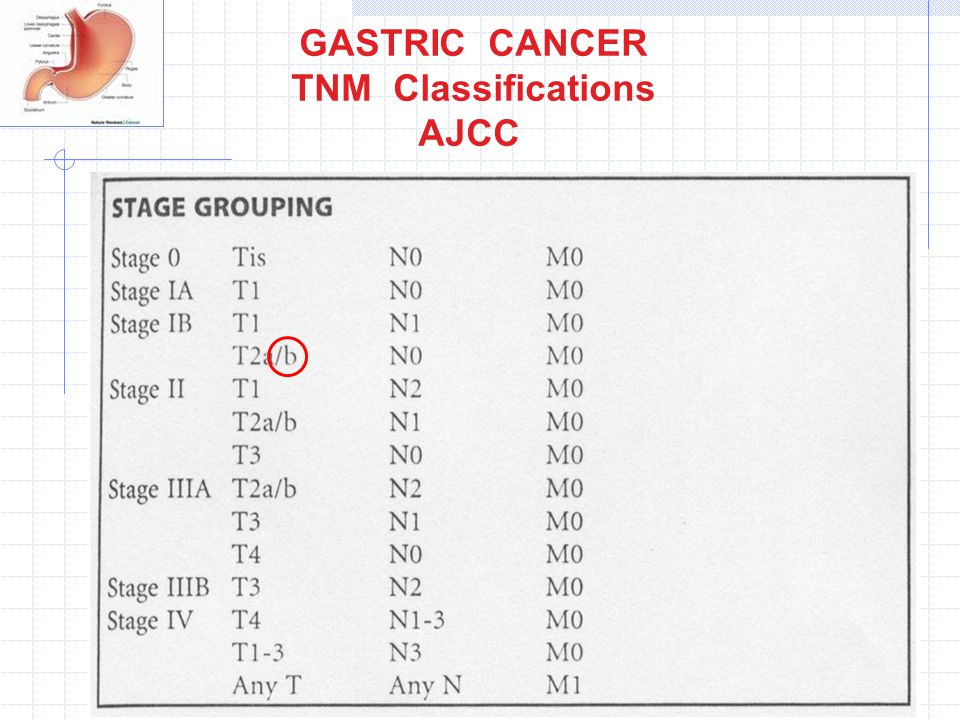 GASTRIC CANCER TNM Classifications AJCC