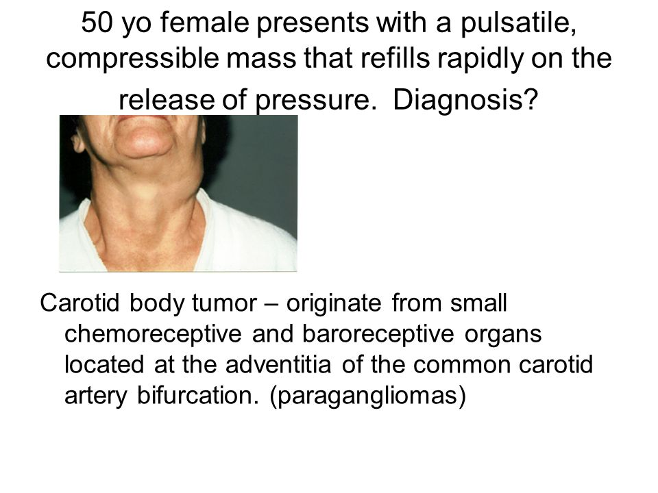 50 yo female presents with a pulsatile, compressible mass that refills rapidly on the release of pressure. Diagnosis