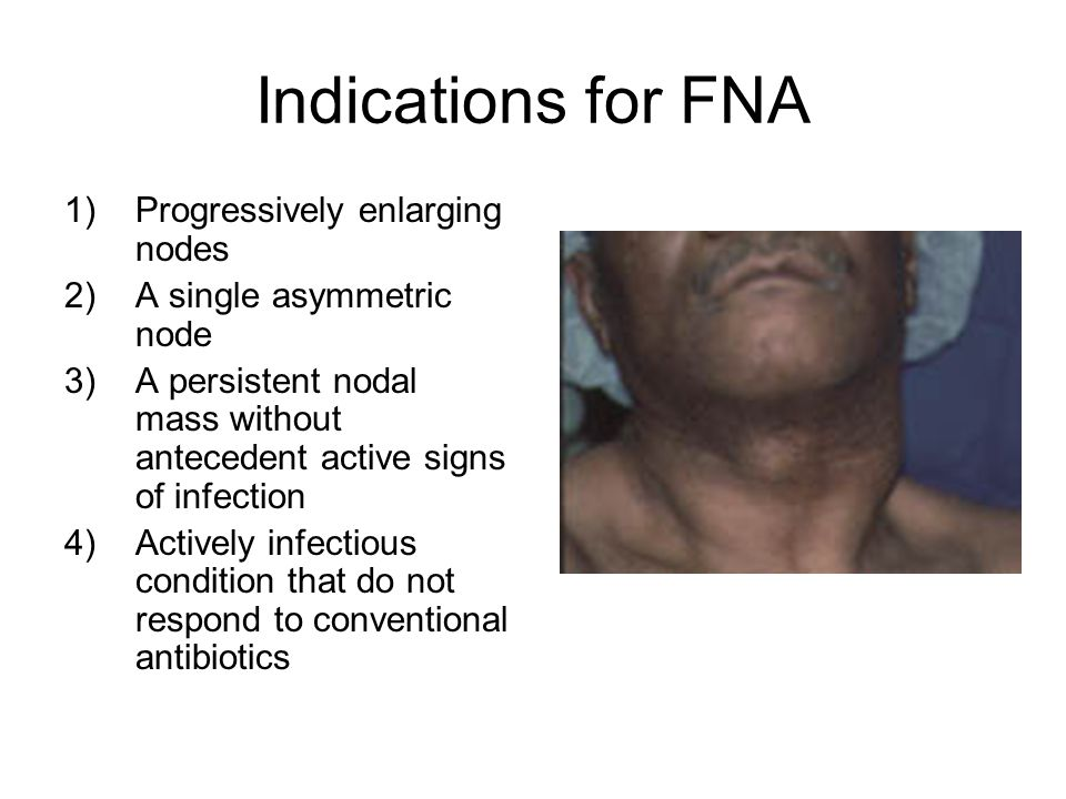 Indications for FNA Progressively enlarging nodes
