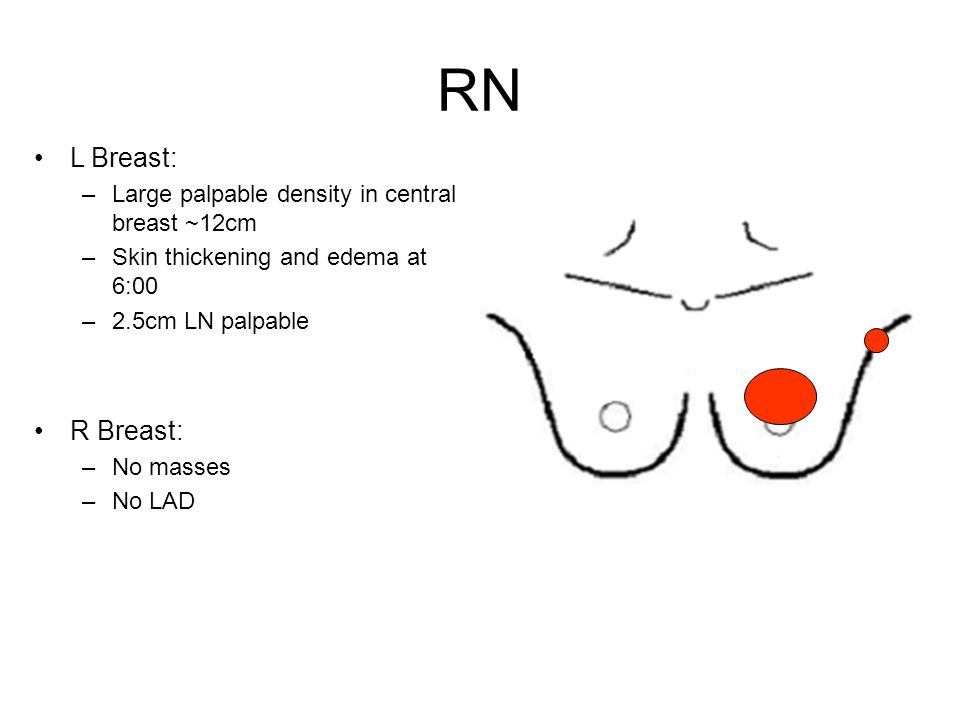 RN L Breast: R Breast: Large palpable density in central breast ~12cm