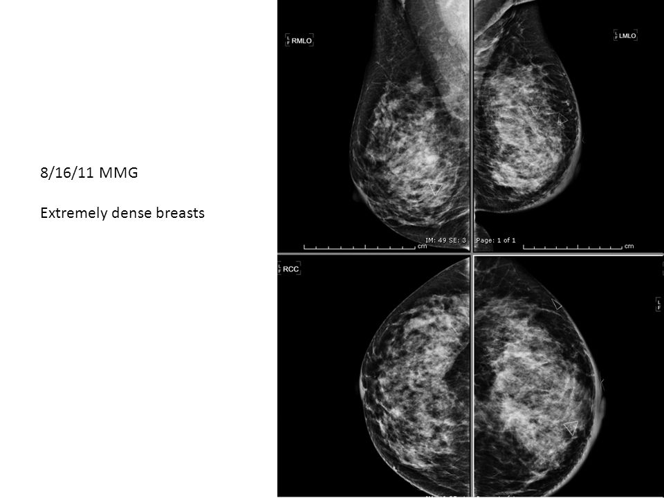 8/16/11 MMG Extremely dense breasts