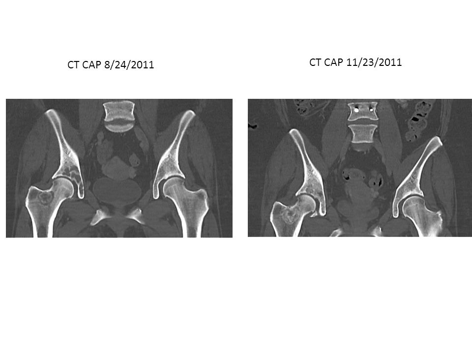 CT CAP 8/24/2011 CT CAP 11/23/2011