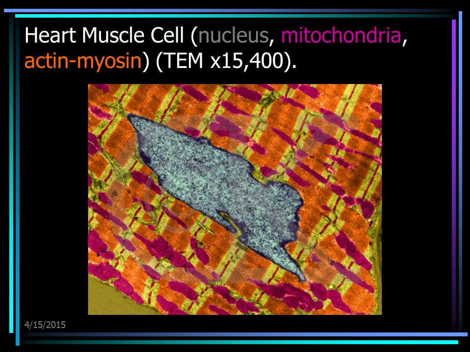 Heart Muscle Cell (nucleus, mitochondria, actin-myosin) (TEM x15,400).