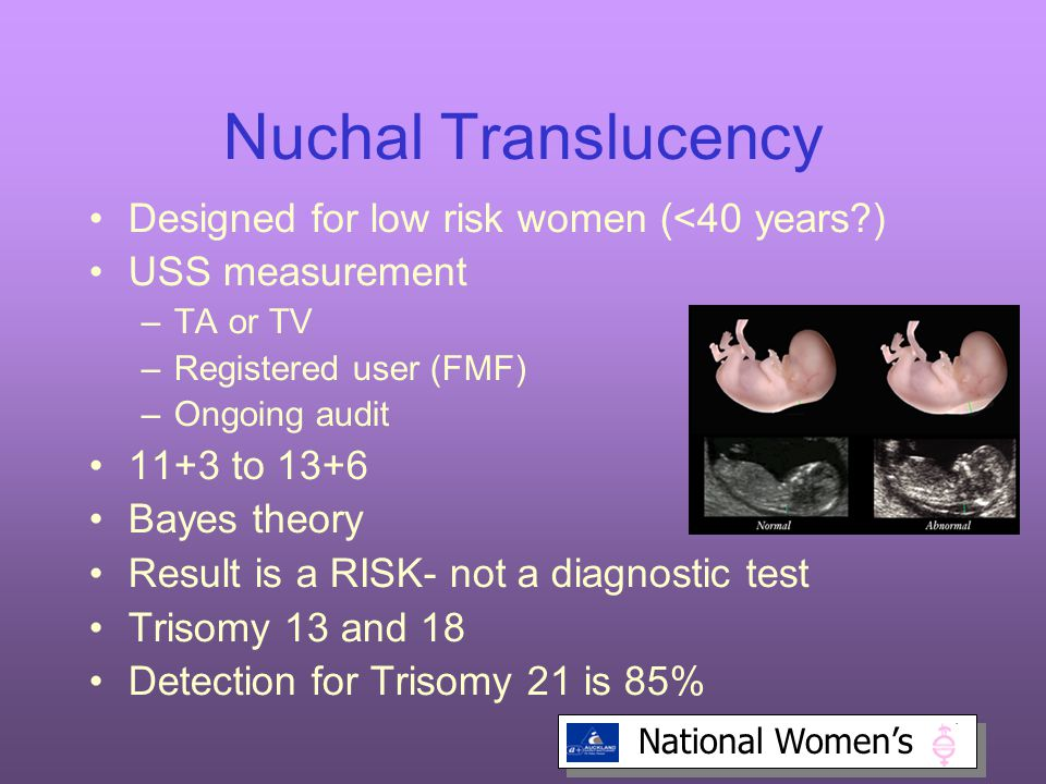 Nuchal Translucency Designed for low risk women (<40 years )‏