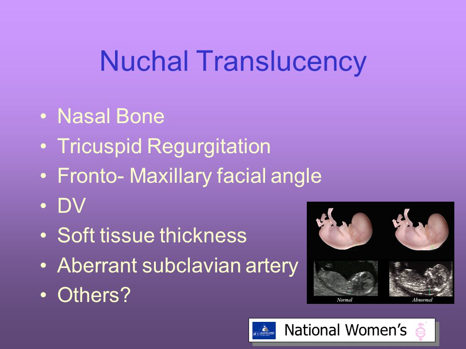 Nuchal Translucency Nasal Bone Tricuspid Regurgitation