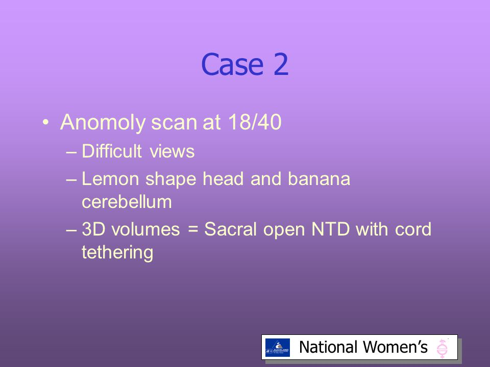 Case 2 Anomoly scan at 18/40 Difficult views