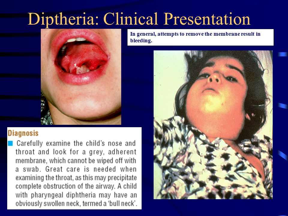 Diptheria: Clinical Presentation