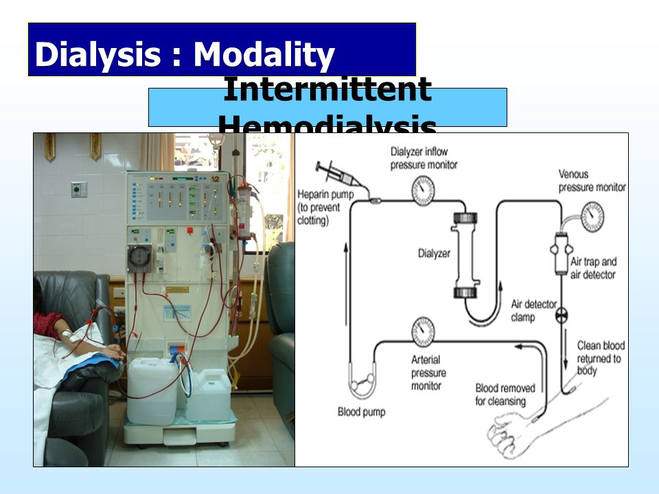 Intermittent Hemodialysis