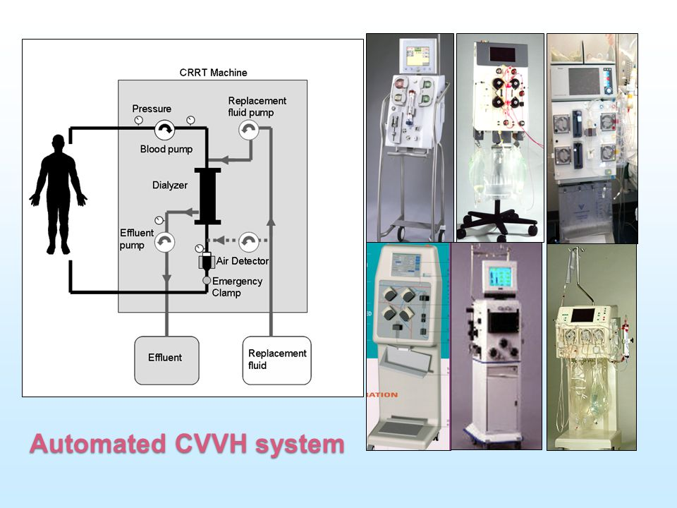 This picture demonstrate the automate CRRT system