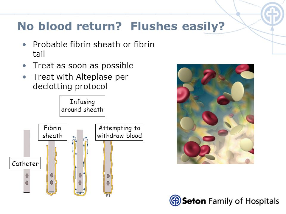No blood return Flushes easily