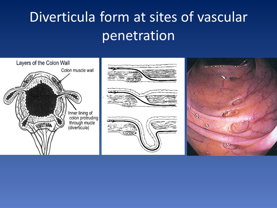 Diverticula form at sites of vascular penetration