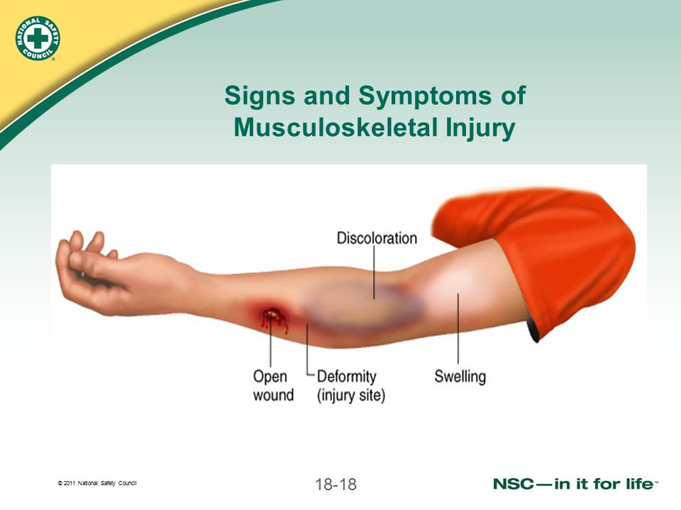 Signs and Symptoms of Musculoskeletal Injury