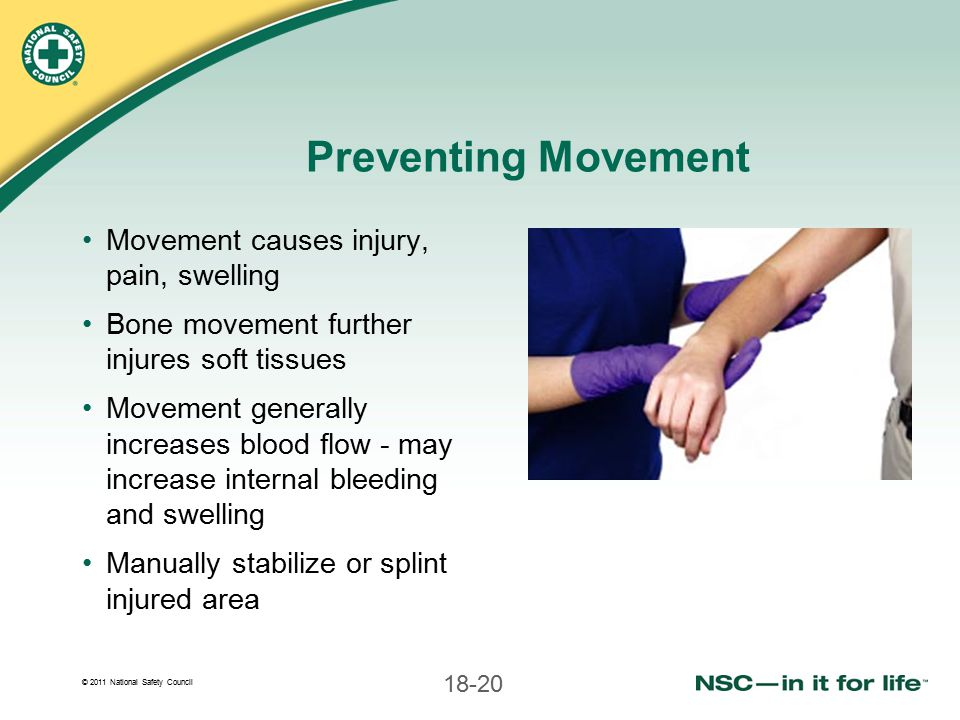 Preventing Movement Movement causes injury, pain, swelling