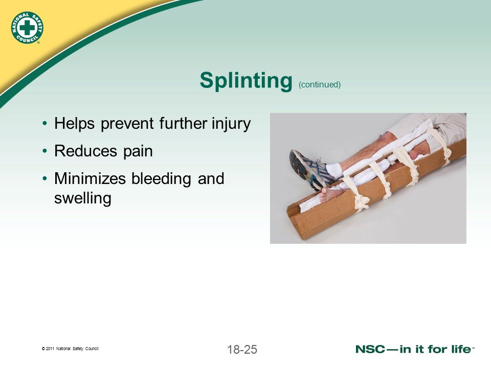 Splinting (continued)