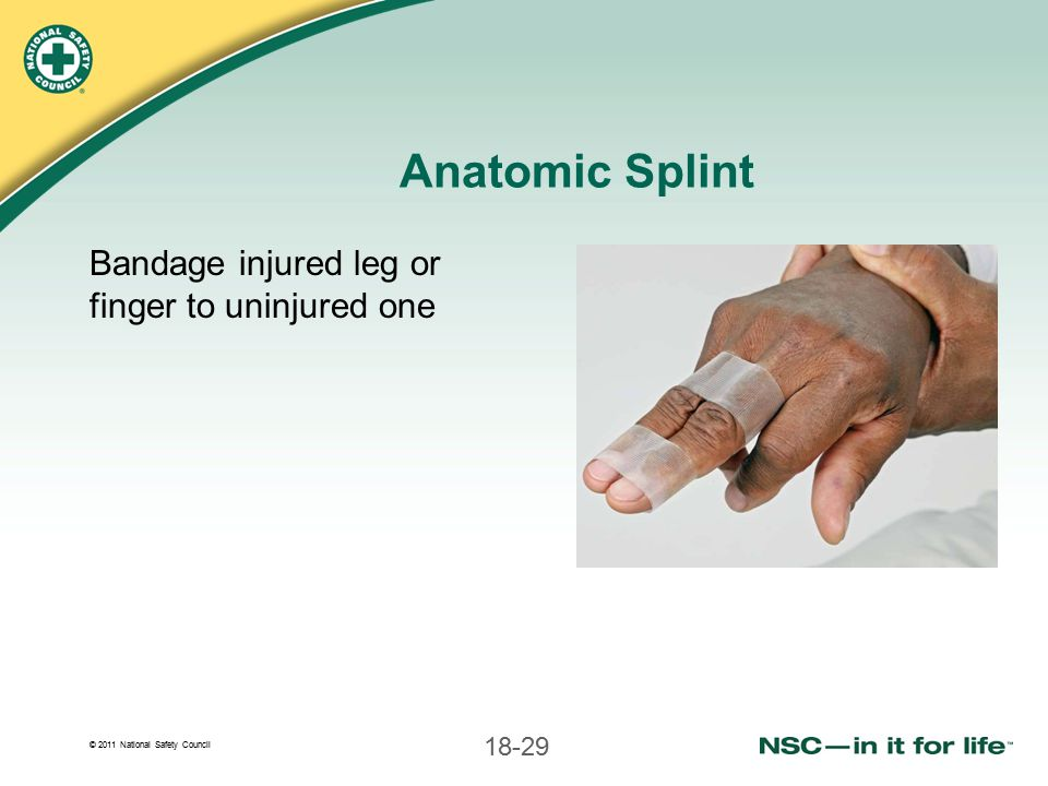 Anatomic Splint Bandage injured leg or finger to uninjured one