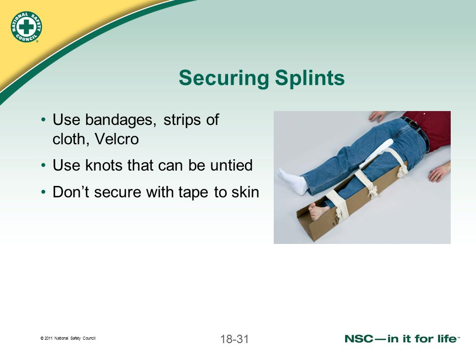 Securing Splints Use bandages, strips of cloth, Velcro