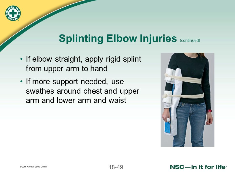 Splinting Elbow Injuries (continued)