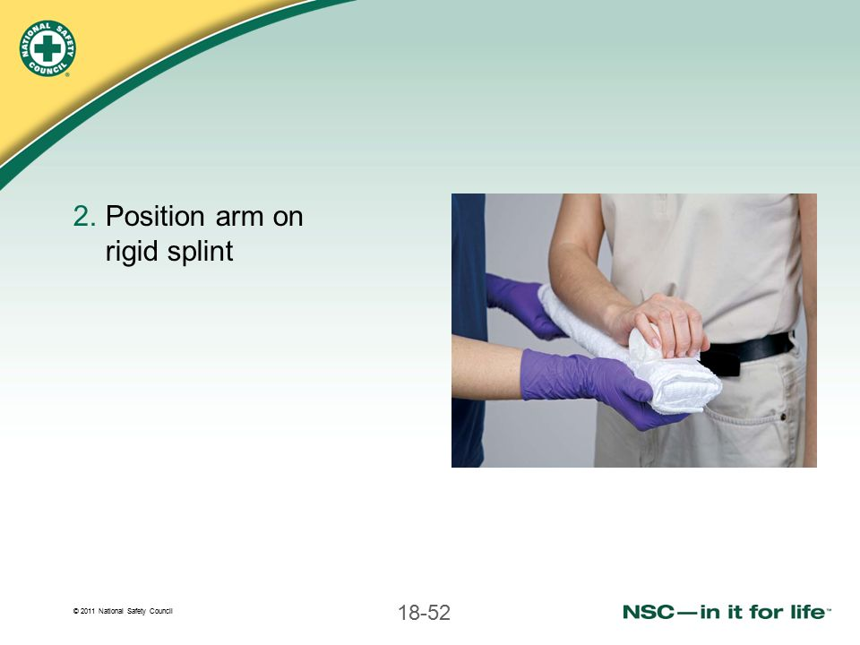 Position arm on rigid splint