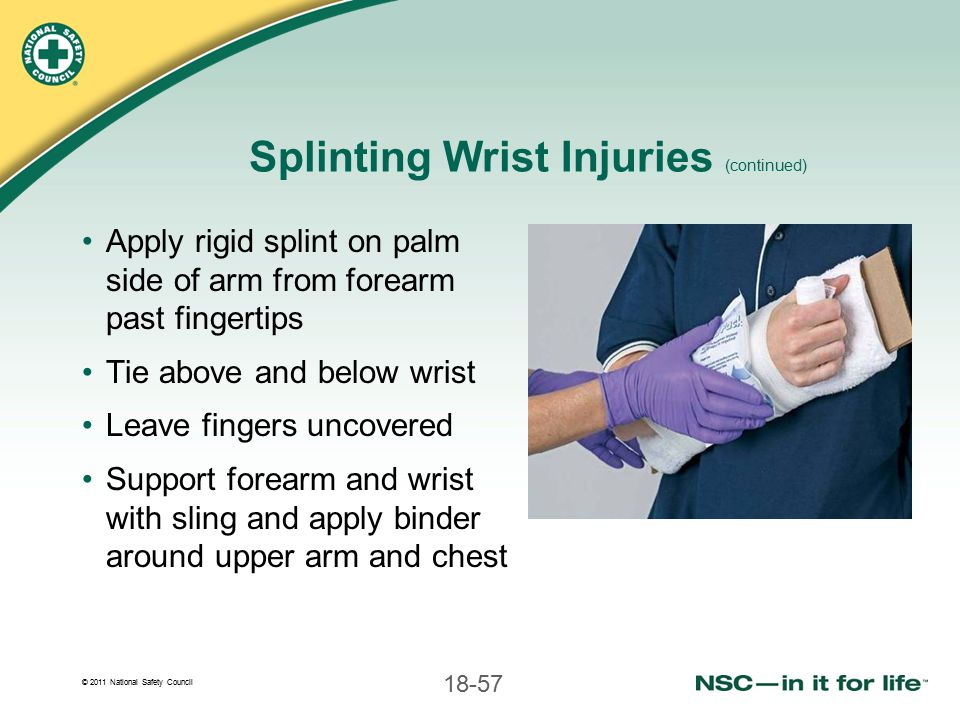 Splinting Wrist Injuries (continued)