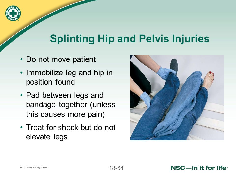 Splinting Hip and Pelvis Injuries