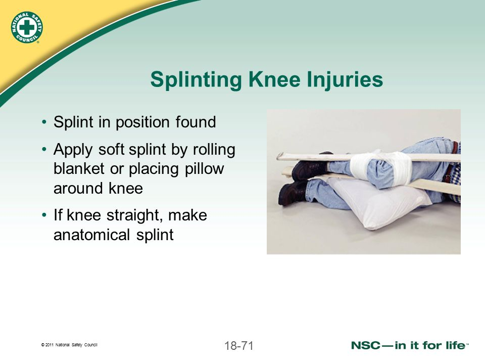 Splinting Knee Injuries
