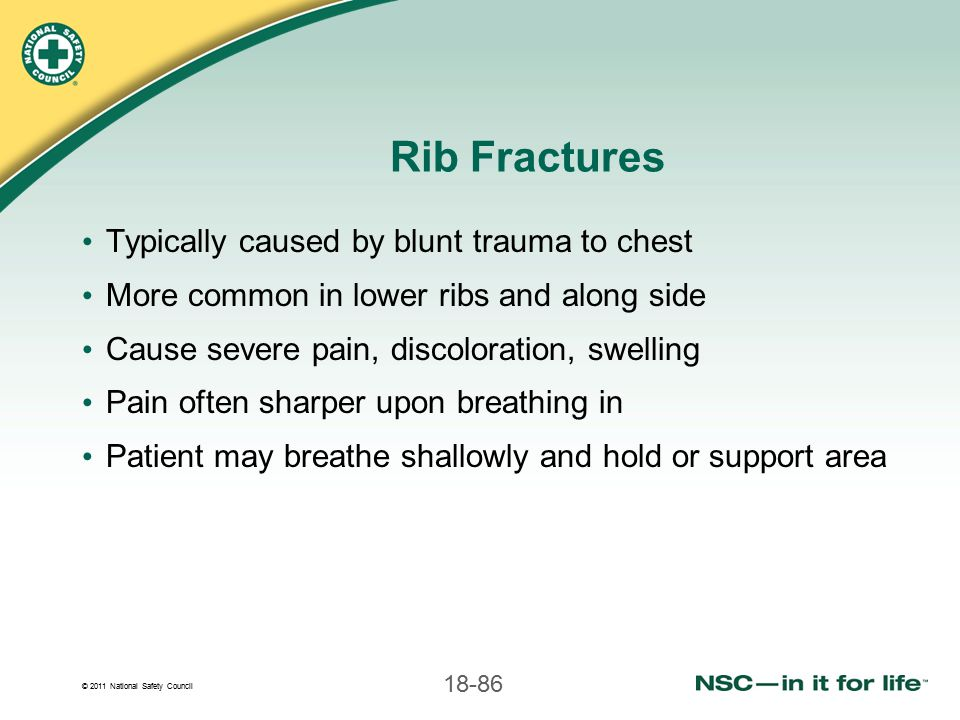 Rib Fractures Typically caused by blunt trauma to chest