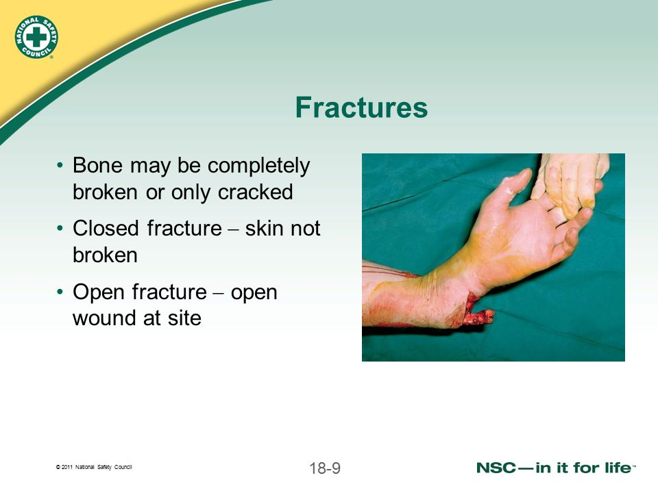 Fractures Bone may be completely broken or only cracked