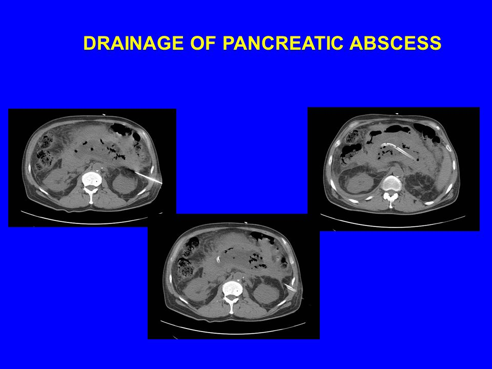 DRAINAGE OF PANCREATIC ABSCESS
