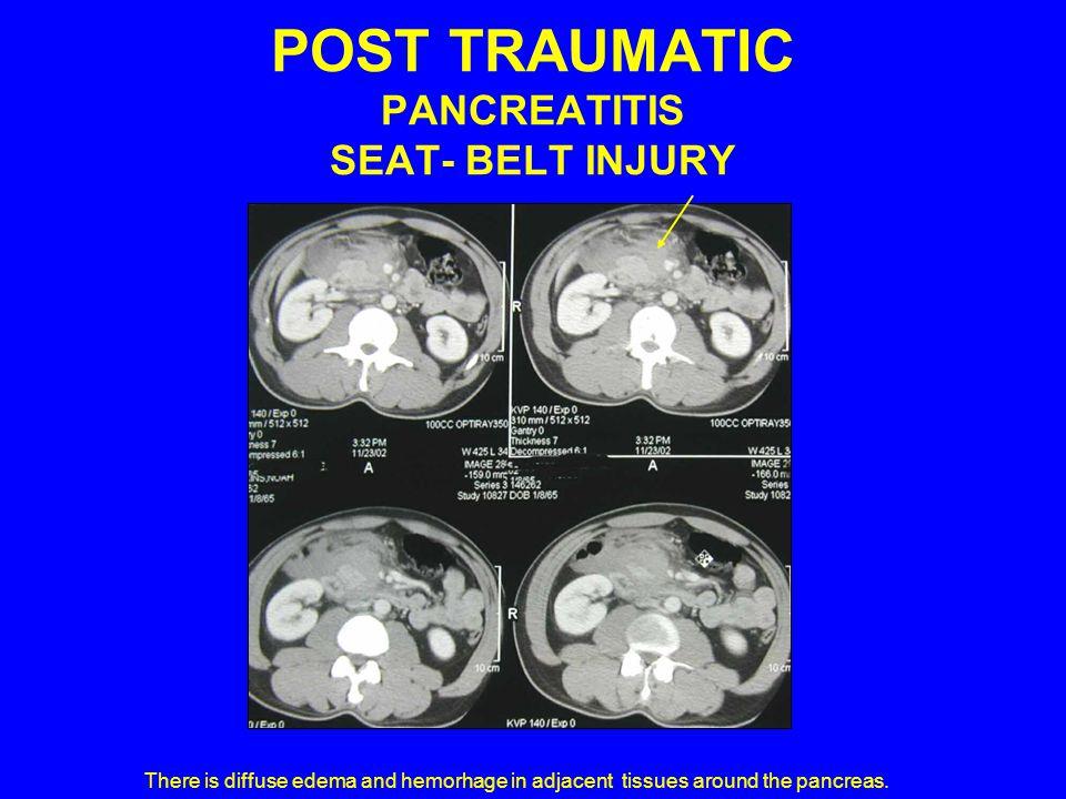 POST TRAUMATIC PANCREATITIS SEAT- BELT INJURY
