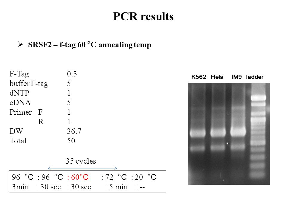 PCR results SRSF2 – f-tag 60 °C annealing temp F-Tag 0.3